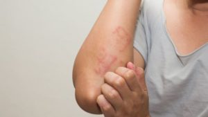 crema dermatitis atópica adultos