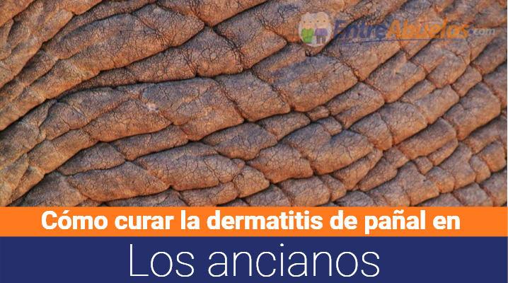 Cómo curar dermatitis del pañal en ancianos: Síntomas y tratamiento