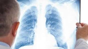 Efectos secundarios del oxígeno en anciano 3